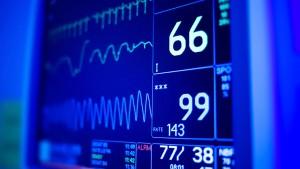 cardiology data